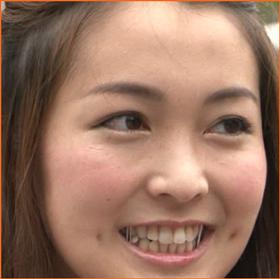 福田典子 顎 画像